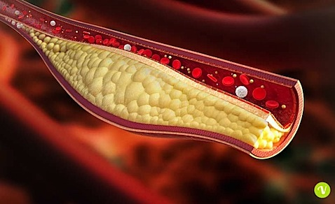 colesterolo.jpg