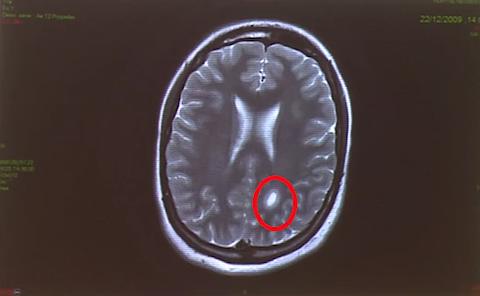 ob_287539_lesions-cerebrales-apres-le-vaccin.png
